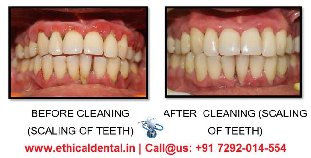 6aefd74cf Teeth Scaling In Noida At Sec 104 - Delhi - Click.in