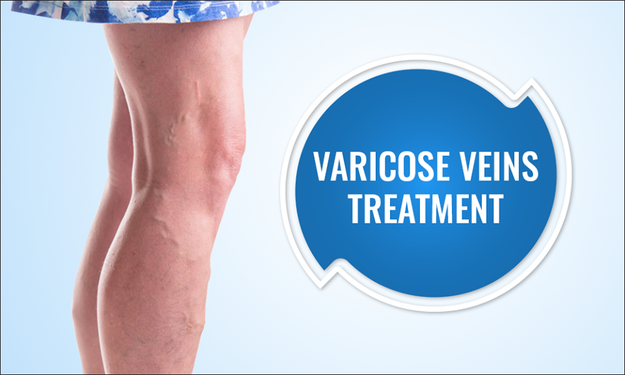 Be A Varicose Vein Free Forever