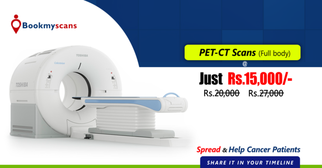 Best Quality PET CT Scan In Bangalore | Rs 14999 - Health, Beauty