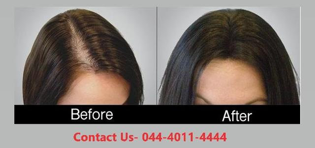 Prp Hair Treatment In Kadambathur Chennai Tamil Nadu - Health