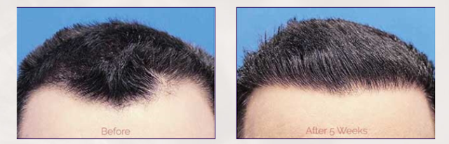 Best Hair Loss Treatment In Delhi Stem Cell Therapy - Health, Beauty