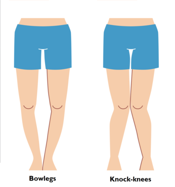 Bow Legs And Knock Knees In Children - Health, Beauty ...