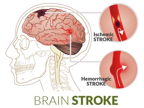 Get Advanced Treatment For Brain Stroke - Health, Beauty