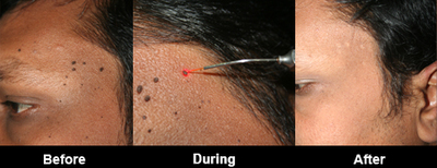 Simply excellent Facial mole removal cost have