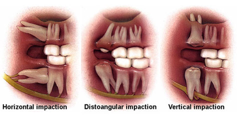 Effective Wisdom Tooth Extraction Hyderabad India Health Beauty Fitness Service In Hyderabad Secunderabad Click In
