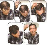 hair builing fiber looking natural for sale  India