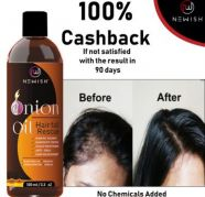 Onion oil Hair fall rescue for sale  India