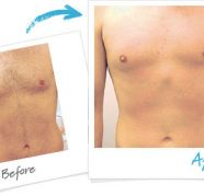 PERMANENT BODY HAIR REMOVAL FOR MEN AND WOMEN for sale  India