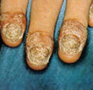 Nail Psoriasis Ayurvedic Treatment, used for sale  India