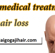 Ayurvedic Best hair loss treatment & Hair regrowth Products, used for sale  India